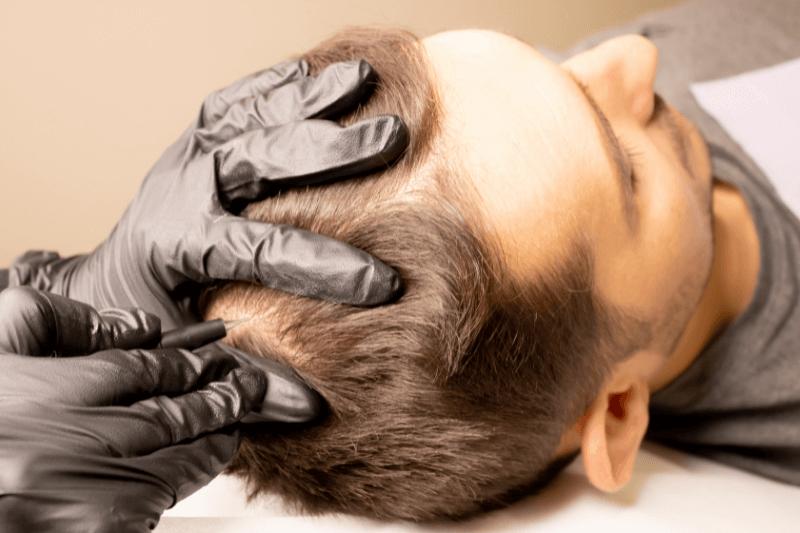ExoFlo_Treatment_for_Men_Offers_Hair_Restoration