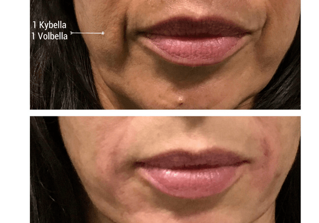 kybella rs=w 640